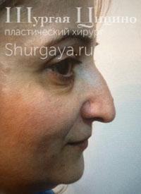 Безоперационная ринопластика, до. Хирург Шургая Ц.М.