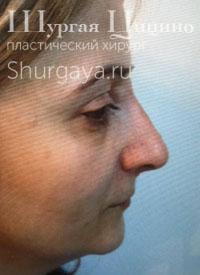 Безоперационная ринопластика, после. Хирург Шургая Ц.М.