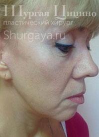 Исправление чужих ошибок, до. Хирург Шургая Ц.М.