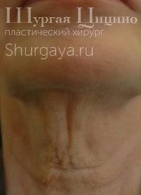 Подтяжка шеи, до. Хирург Шургая Ц.М.