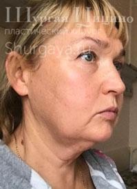 Подтяжка лица, до. Хирург Шургая Ц.М.