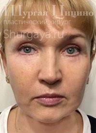 Подтяжка лица, после. Хирург Шургая Ц.М.